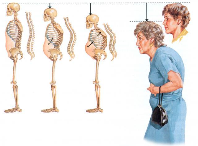 Остеопароз